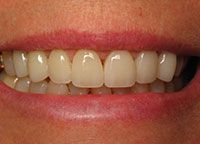 Closeup of perfectly repaired teeth