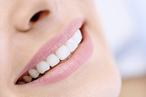 Closeup of smile with porcelain veneers